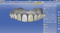 Video advertisment, Films and clips, Advertising video for dental clinic